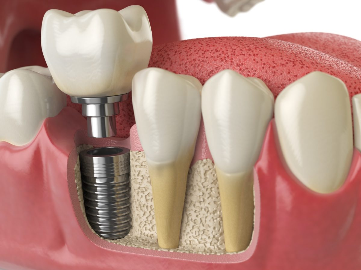 anatomy-of-healthy-teeth-and-tooth-dental-implant-P5PWYZQ-1200x900.jpg