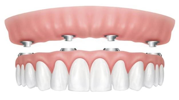 Implantologia dentale | Studio Marongiu | Dentista Capoterra