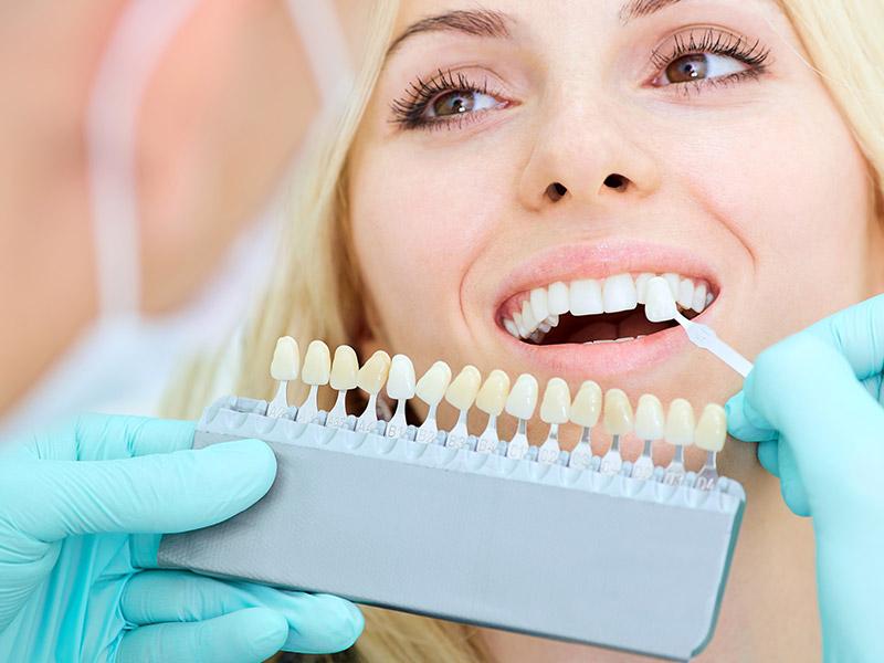 Odontoiatria-estetica.jpg