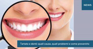 tartaro e denti